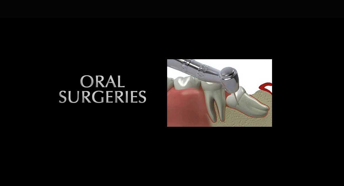 Oral-Surgeries