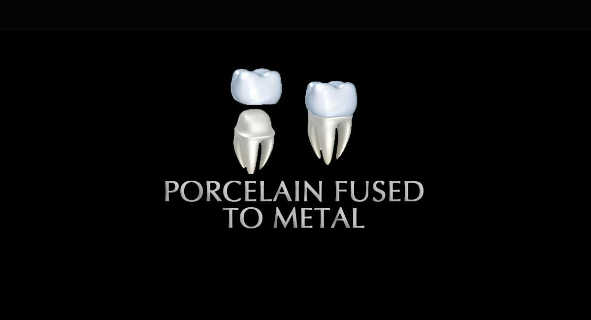 Porcelain-Fused-to-Metal