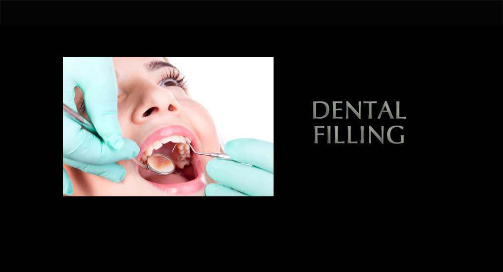 dental-filling-1