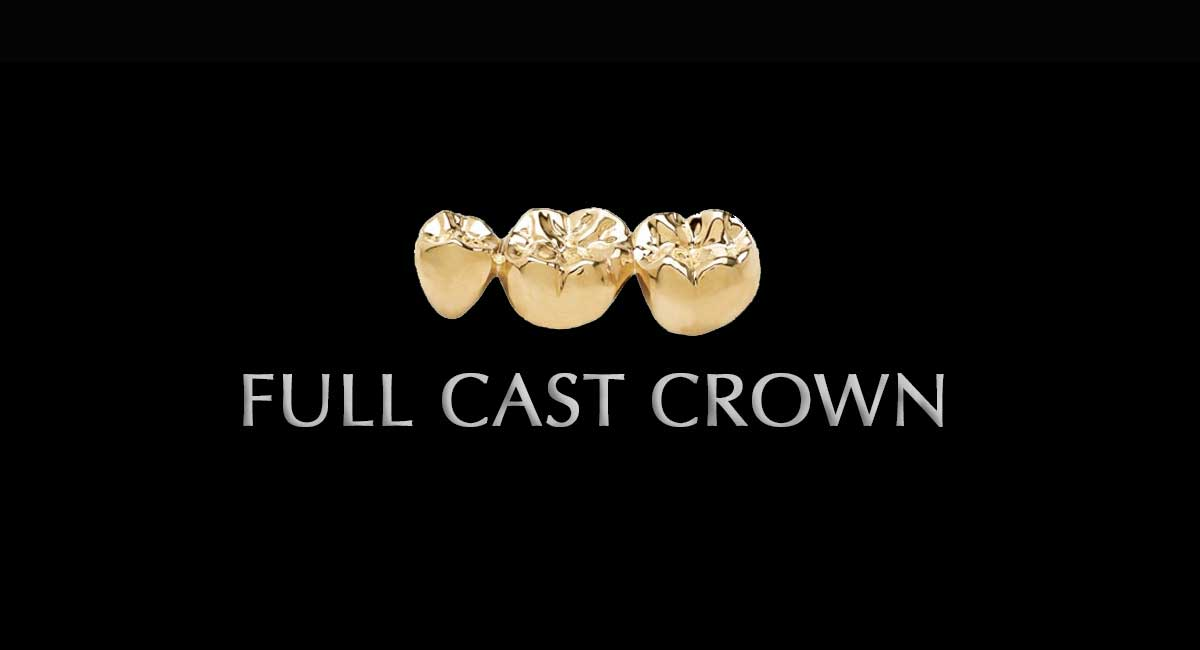 full-cast-crown1