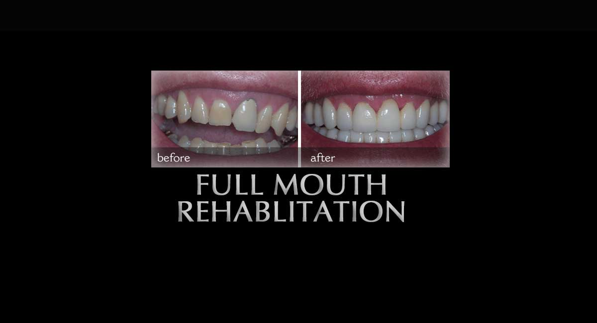 full-mouth-rehablitation