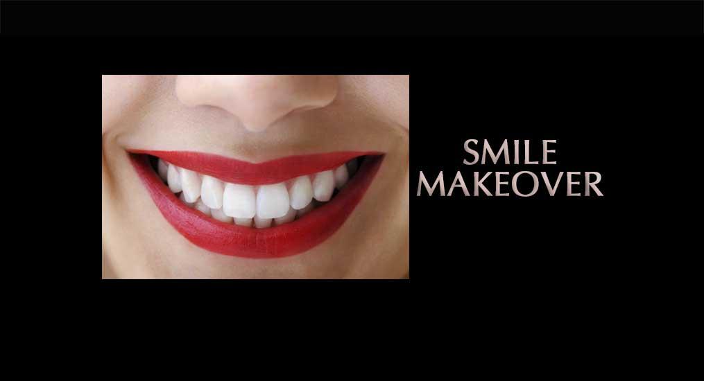 smile-makeover01