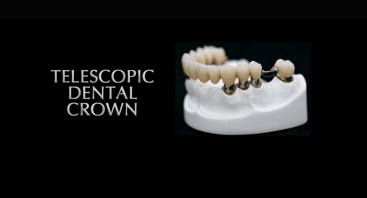 Telescopic dental crown western dental hospital and clinic in